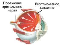 4_kopiya_kopiya